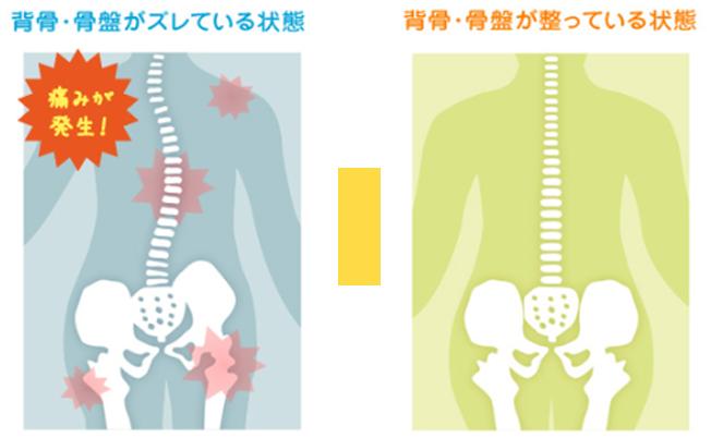 背骨・骨盤のズレ比較